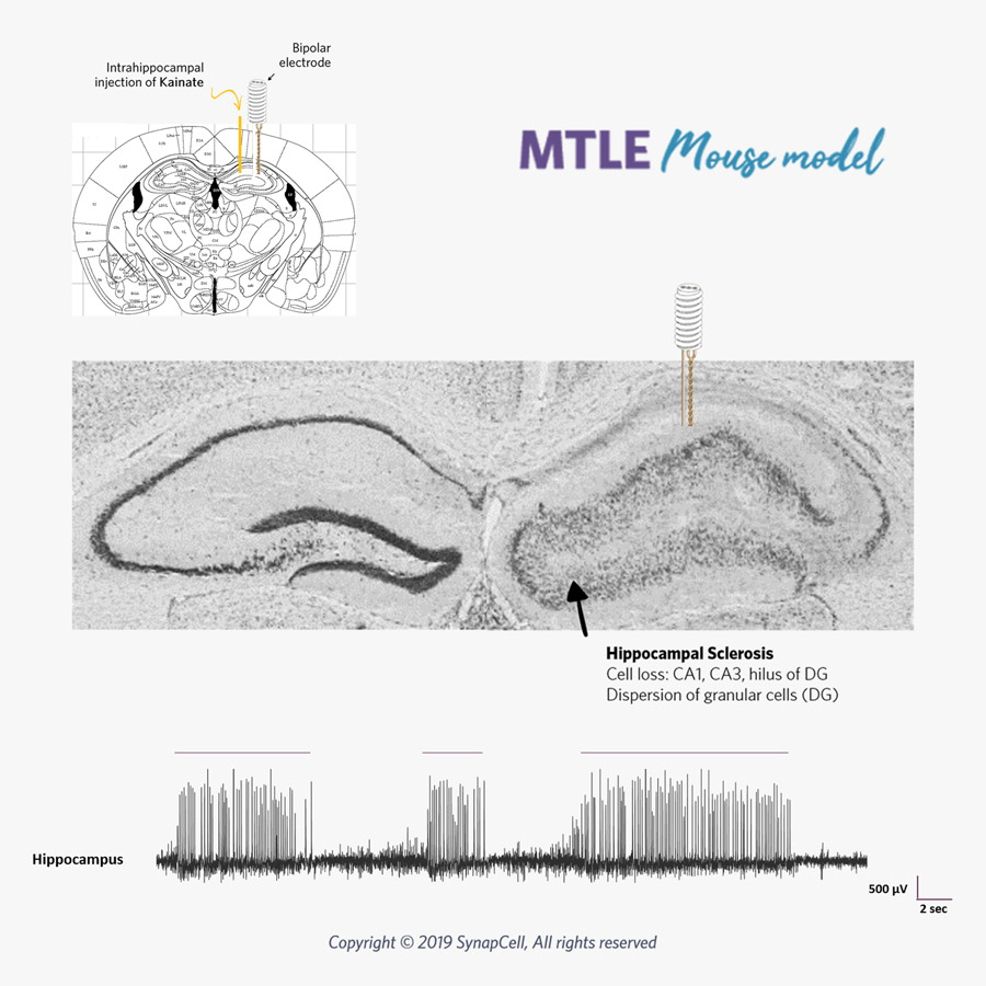 MTLE-Histo-HPD-SynapCell-In-vivo-efficacy-Testing-on-CNS-disorders